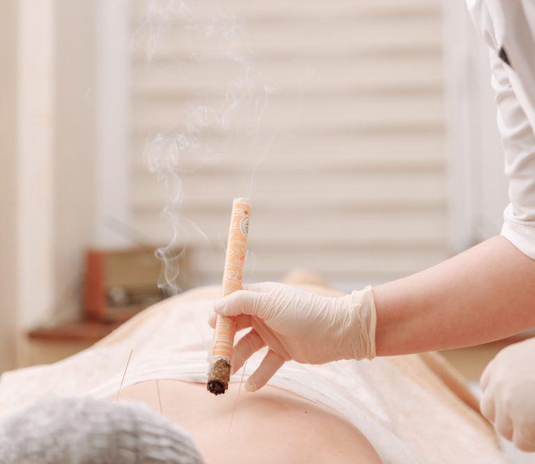 médecine chinoise traditionnelle séance de moxibustion